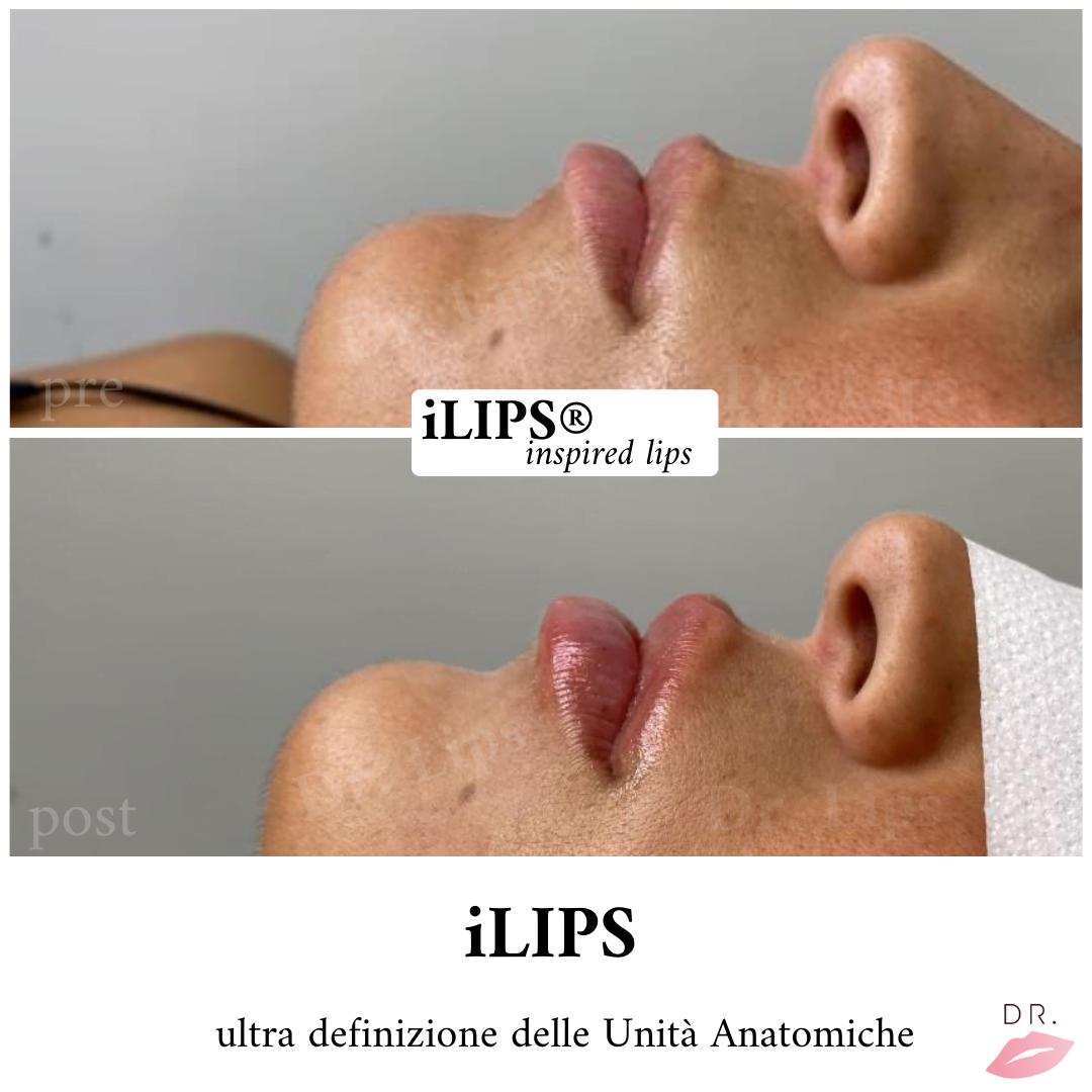 definizione - labbra