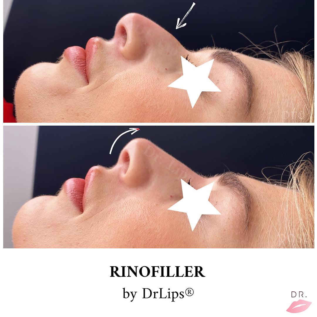 rinofiller-drlips-innalzamento punta