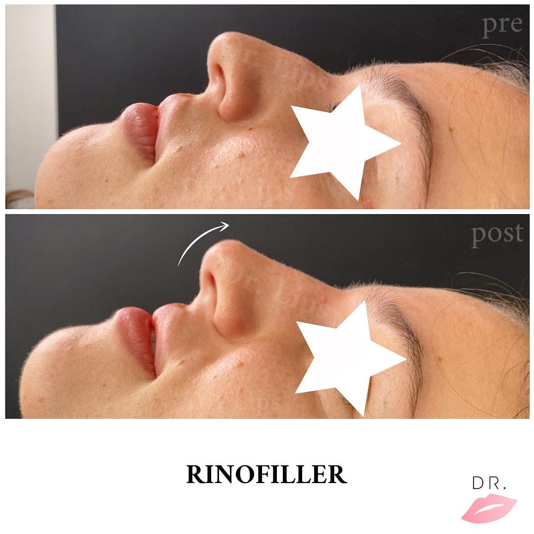 drlips - rinofiller
