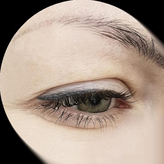 drlips - occhiaie senza bisturi